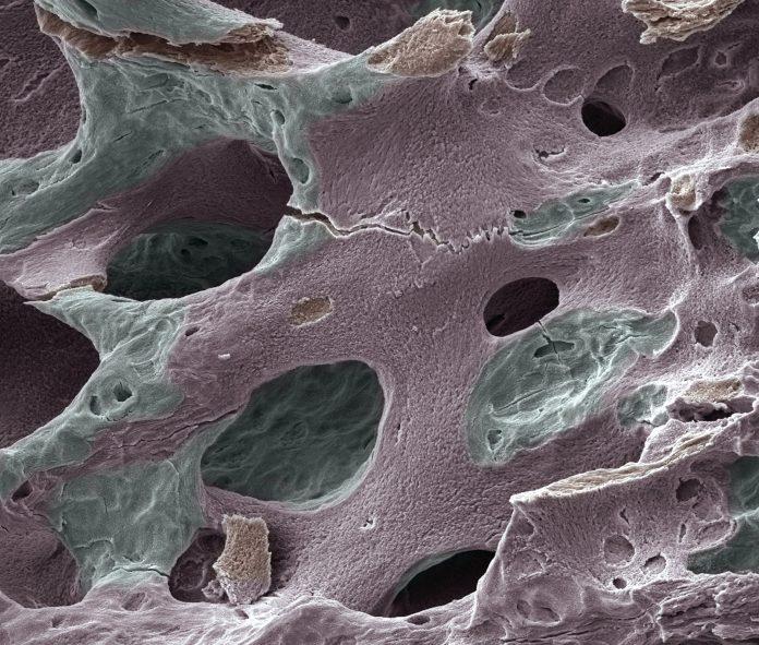 Scanning electron micrograph (SEM) of human bone, osteoporosis